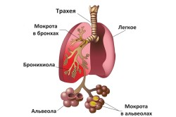 Пневмония - причина кашля с кровью