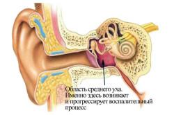 Локализация воспалительного процесса в ухе