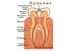 Пульпит зуба