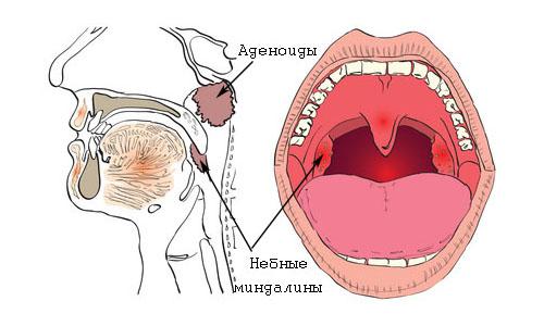 Воспаление миндалин при болезнях горла