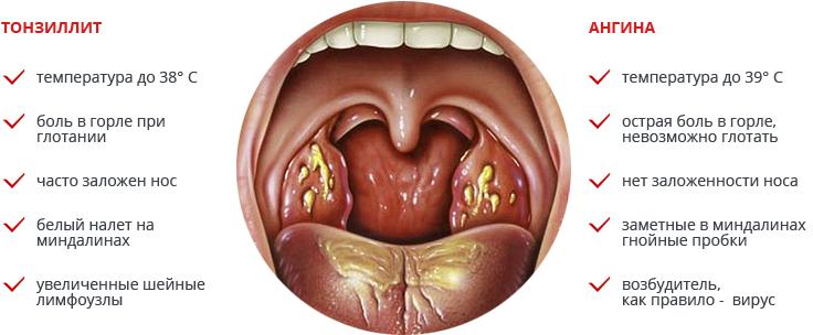 Герпетическая ангина фото симптомы и лечение