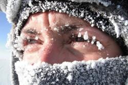 Холод - причина корочек в носу