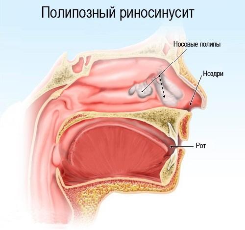 Дифференцальная диагностика псориаза