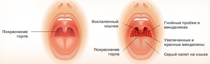 Профессор ермаков о лечении рака