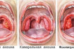 Распространенные типы ангины