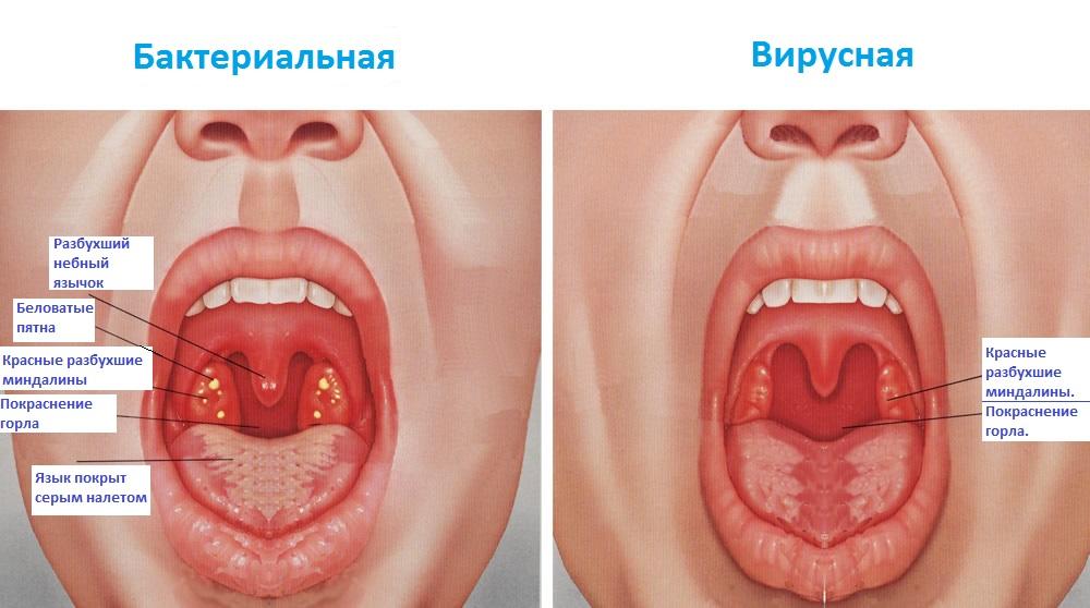 Первичный тип болезни
