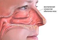 Воспаленная слизистая оболочка носа