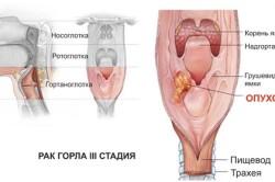 III стадия рака горла (гортани)