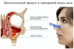Патологический процесс в гайморовой пазухе носа