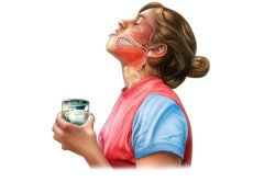 Полоскание при воспалении слизистой горла