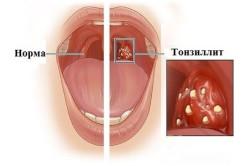 Схема тонзиллита