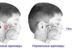 Сравнение воспаленных и нормальных аденоидов