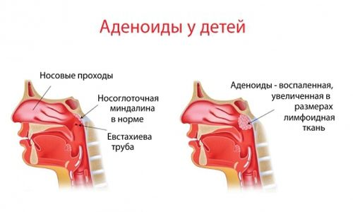 Схематическое изображение воспаления аденоидов у детей