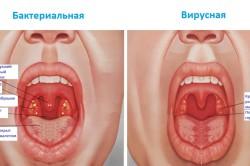 Бактериальная и вирусная ангина