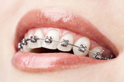 Брекеты - причина боле в челюсти