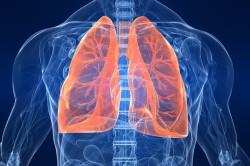 Риск заболевания пневмонией