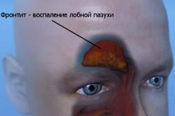 Фронтит - воспаление лобной пазухи