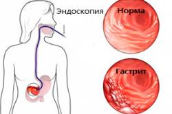 Гастрит в результате заболеваний горла