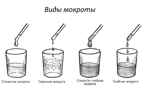 Виды мокроты (слизи) в горле и бронхах