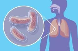 Возникновение кашля в связи с туберкулезом