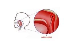 Заложенность носа при воспалении аденоидов