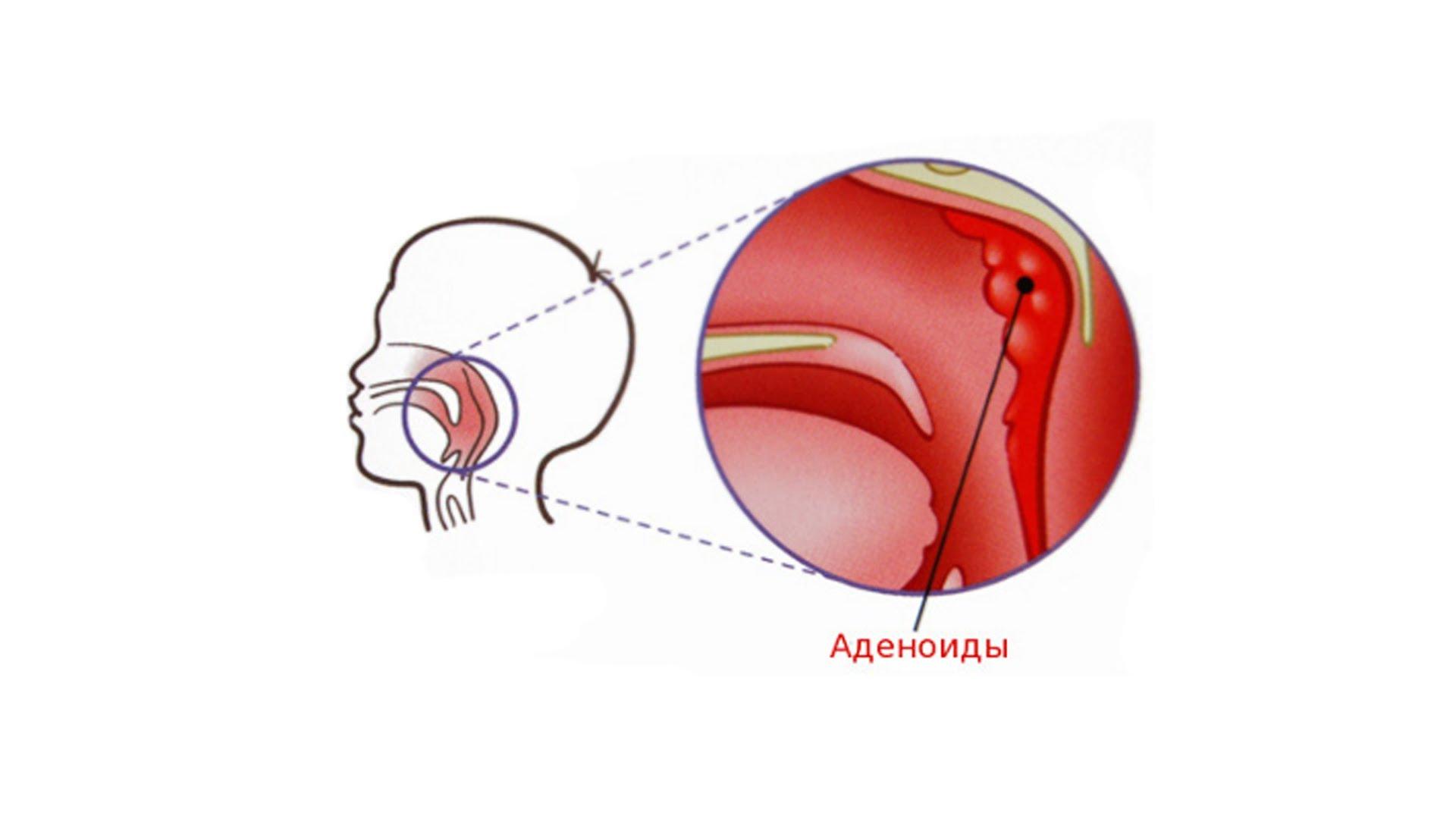 Лечение гипертонии дозы препаратов