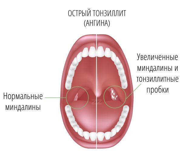 запах изо рта как лечить медикаментозно