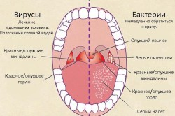 Различия вирусного и бактериального фарингита