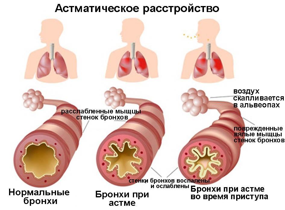 очистка организма от паразитов отзывы