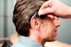 Слуховой аппарат при возникновении шума в ушах