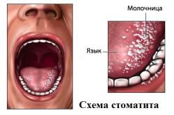 Стоматит - причина гайморита у детей