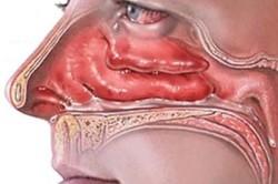 Отечность носа - признак кисты верхнечелюстной пазухи