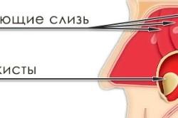 Схема образования кисты в верхнечелюстной пазухе