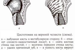 Цистэктомия верхнечелюстной пазухи