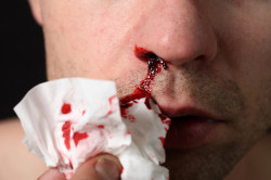 Кровотечение при сухости в носу