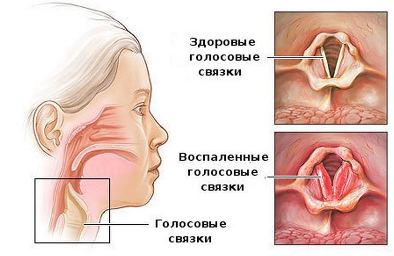 Препараты в лечении логоневроза