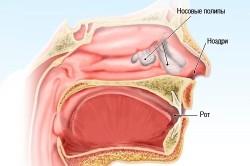 Схема полипа в носу