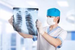Рентген легких при кашле