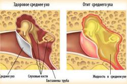 Отит - причина шума в ушах головокружений