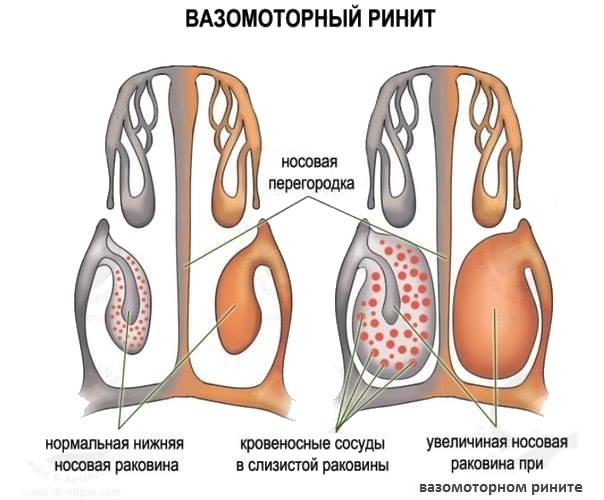 хронический гайморит запах изо рта