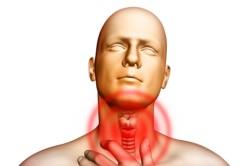 Жжение в горле при хроническом гипертрофическом ларингите