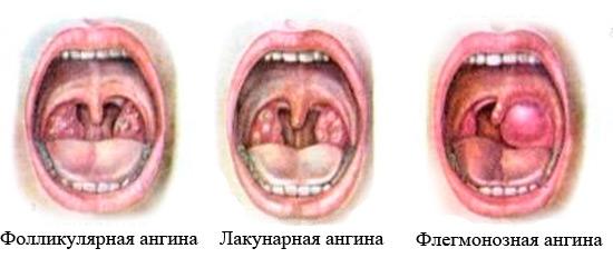 Ангина без температуры у детей: симптомы и лечение 66