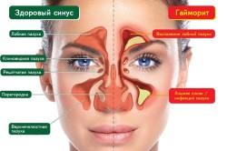 Методы лечения гайморита в больнице на стационаре